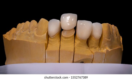 Ceramic crowns on a gypsum model in Articulator. Zirconia crowns. Metal-free ceramics at the manufacturing stage. Close-up, black isolate.