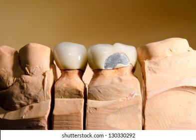 ceramic dental crown with spalling, plaster cast