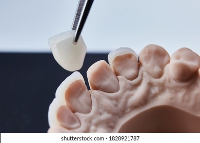 Ceramic dental veneers. Close-up view of dental layout of lower row of teeth prothesis on artificial jaw, medical concept. Shallow dof.