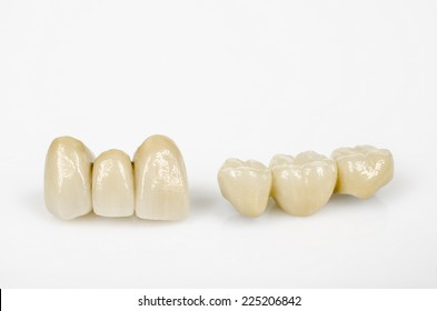 ceramic incisors and side teeth (with metal core)