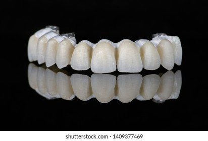 Ceramic teeth dental crowns model on black background. Front view.