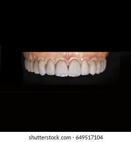 Ceramic teeth dental crowns on model, metal free - front view .Ceramic front veneers isolated on black background. Metal-Ceramic crowns on gypsum model in dental laboratory.