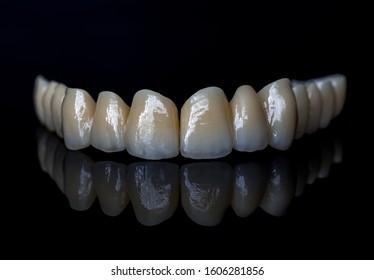 Ceramic teeth - Dental technician