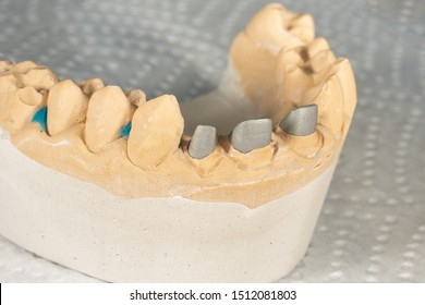 Ceramic tooth crowns and metal pins close-up macro. Orthopedic dentistry restoration decayed teeth