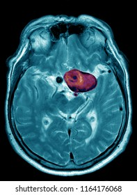 cerebral aneurysm, MRI