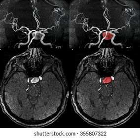 Cerebral artery aneurysm, MRI