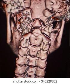 cervical spine, CT