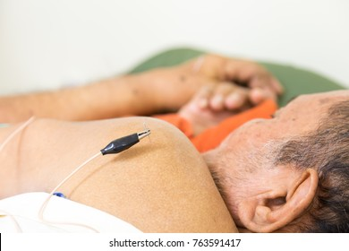 ChaCherngSao, Thailand - 06 July 2016 : Therapist Giving acupuncture Treatment To a old man in hospital