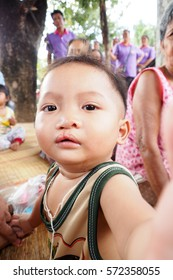 Chaiyaphum ,Thailand - January 15,2016 : Family of cleft lip / cleft palate child monitoring visit by family doctor in village of the eastern part of Thailand.
