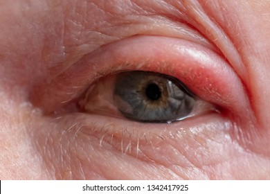 Chalazion and Hordeolum (Stye) are sudden-onset localized swellings of the eyelid, Swollen eyes caused by inflammation, Selective focus on eyelid.