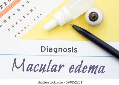 Chart for testing visual acuity, eye drops and anatomical model lies next to inscription Diagnosis Macular Edema. Concept for diagnosis, treatment and prevention of ophthalmic disease Macular Edema