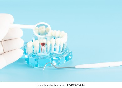 Check up nerve in molar tooth in oral health care concept.