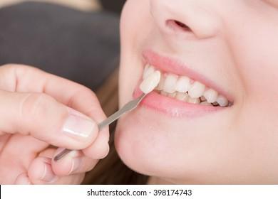 Check veneer of tooth crown in a dental laboratory