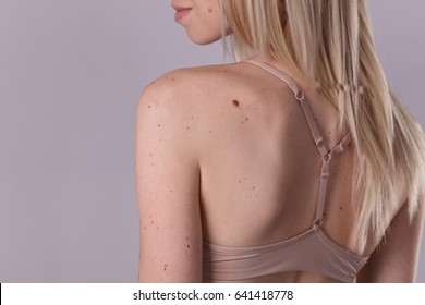 Checking benign moles : Beautiful Woman with birthmarks on her back and face. Laser skin tags removal