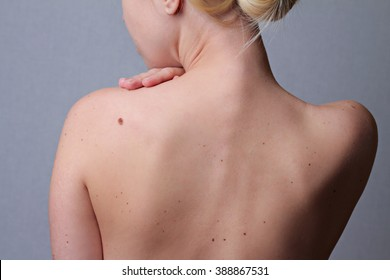 Checking benign moles : Woman with  birthmarks on her back . Sun Exposure effect on skin, Health Effects of UV Radiation