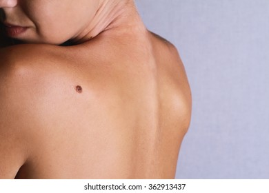 Checking benign moles : Young woman looking  with birthmark on her back / skin. Sun Exposure effect on skin, Health Effects of UV Radiation