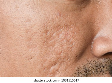 The cheek of men with facial problems. Acne scars,large pores,pimple, comedone,oily and dull skin.The photo is suitable for case studies  in the medical or cosmetic.