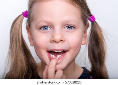 Cheerful cute child with teeth dropped out - preschooler girl with open mouth without milk tooth
