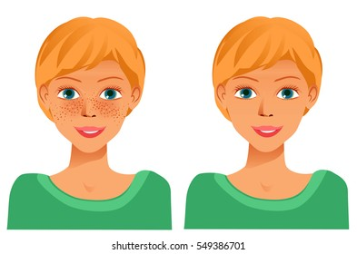 Cheerful cute young girl with freckles and same girl  without freckles. Concept for whiten skin and remove freckles, dark spots and sunspots. Raster version.