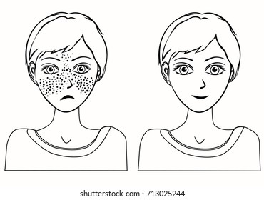 Cheerful cute young girl with freckles and same girl  without freckles. Concept for whiten skin and remove freckles, dark spots  and sunspots. Line drawings. Raster version.