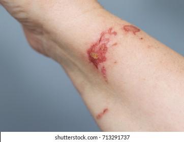 Chemical burn on woman hand.