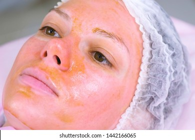 Chemical peeling o the woman's face. Cleaning the face skin and lightening freckles skin. Close-up face