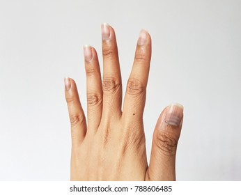 Nail Cancer Images, Stock Photos & Vectors | Shutterstock