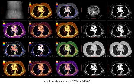Chest CT - Medical Imaging- Radiology- High Resolution Thorax  Computed Tomography