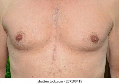 Chest of a man who has undergone open heart surgery 7 months previously, showing how the scars have healed.