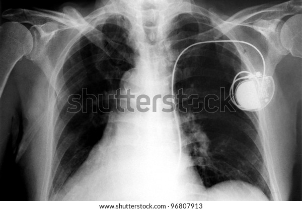 chest with the pacemaker on x-ray film