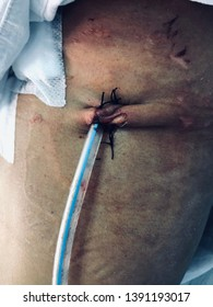 Chest wound skin tissue and intercostal drainage tube for drainage blood or release pleural effusion. Medical and healthcare concept.