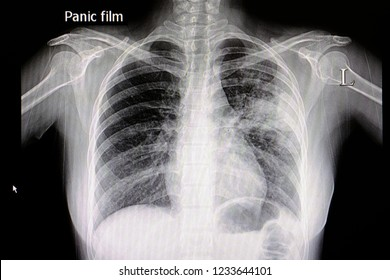 A chest x ray film of a patient with left middle lung pneumonia. Alveolar infiltration. Medical Education. Medical Information. Abnormal xray. Lung infections. Bacteria. Virus. Tuberculosis.