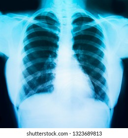 Chest x ray film of a patient