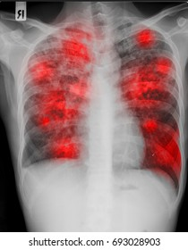 The chest X ray of patient presented with chronic cough who is sicked by disseminated pulmonary tuberculosis from mycobacterium tuberculosis with the red infiltration