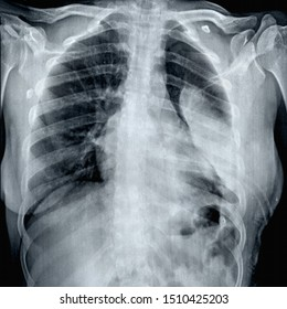 chest x -ray with tabulated empyema