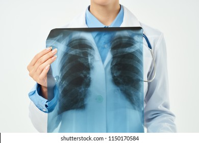 chest X-ray in the doctor's hand