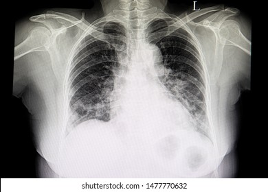 A chest xray film of a patient with cardiomagaly, congestive heart failure and pulmonary edema.