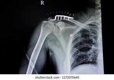 A chest x-ray film of a traumatic injuried patient with fractured distal clavicle with metal plate and screws fixation.  Pulmonary tuberculosis is suspected.