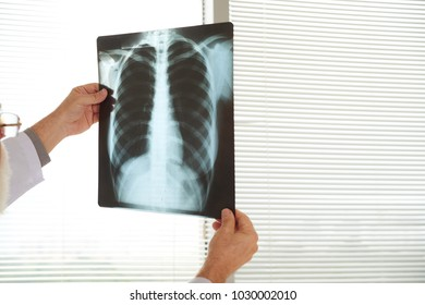 Chest x-ray in hands on radiologist
