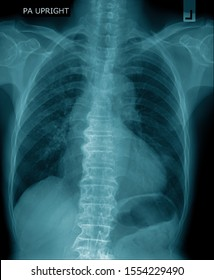 chest x-ray image in blue tone on black background