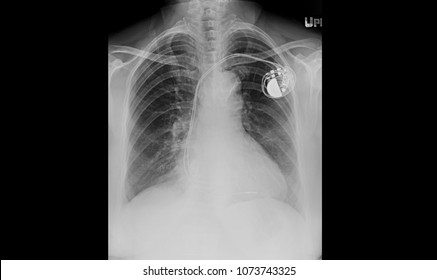 Single chamber pacemaker x ray