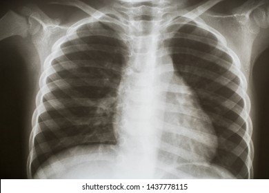 Chest X-ray image at hospital.