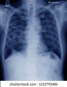 chest x-ray image with secretion inside of both lung