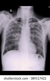 Chest x-ray PA upright show interstitial infiltration at both lung due to mycobacterium tuberculosis infection (Pulmonary tuberculosis)