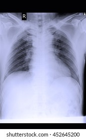 chest xray show cardiomegaly abd congestive heart failure