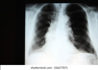 Chest X-ray showing hyperinflation of the lungs compatible with COPD. The wide mediastinum is due to a tortuous thoracic aorta.