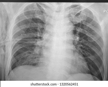 Chest Xray showing Right Lung Pneumothorax with Surgical Empysema and Chest tube in place.