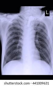 chest xray : tracheostomy tube : lung