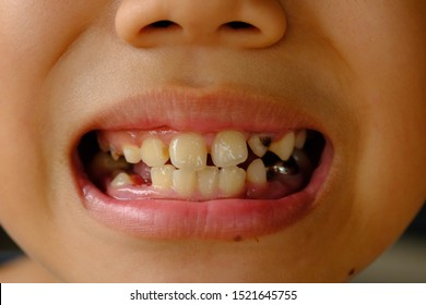 Chiang Rai, Thailand - August 3, 2019: Close up of unhealthy baby teeth,close up the boy patient open mouth showing cavities teeth decay.