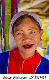 CHIANG RAI, THAILAND - FEBRUARY 01, 2018: Close up of unidentified woman smiling with terrible teeth belongs to a Karen Long Neck hill tribe village Kayan Lahwi , Karen woman in traditional costumes